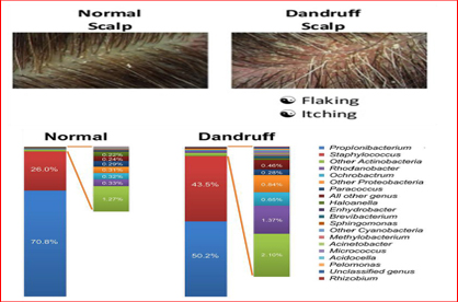 Microbial flora of Dandruff-a scalp disorder