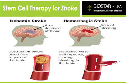 Stroke Patients Able To Walk Again After Stem Cell Transplant