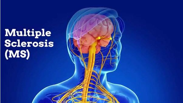 Multiple Sclerosis -MS