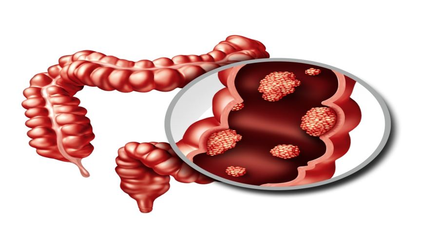 New Colorectal Cancer Biomarker Could Be Lipid Producing Enzyme