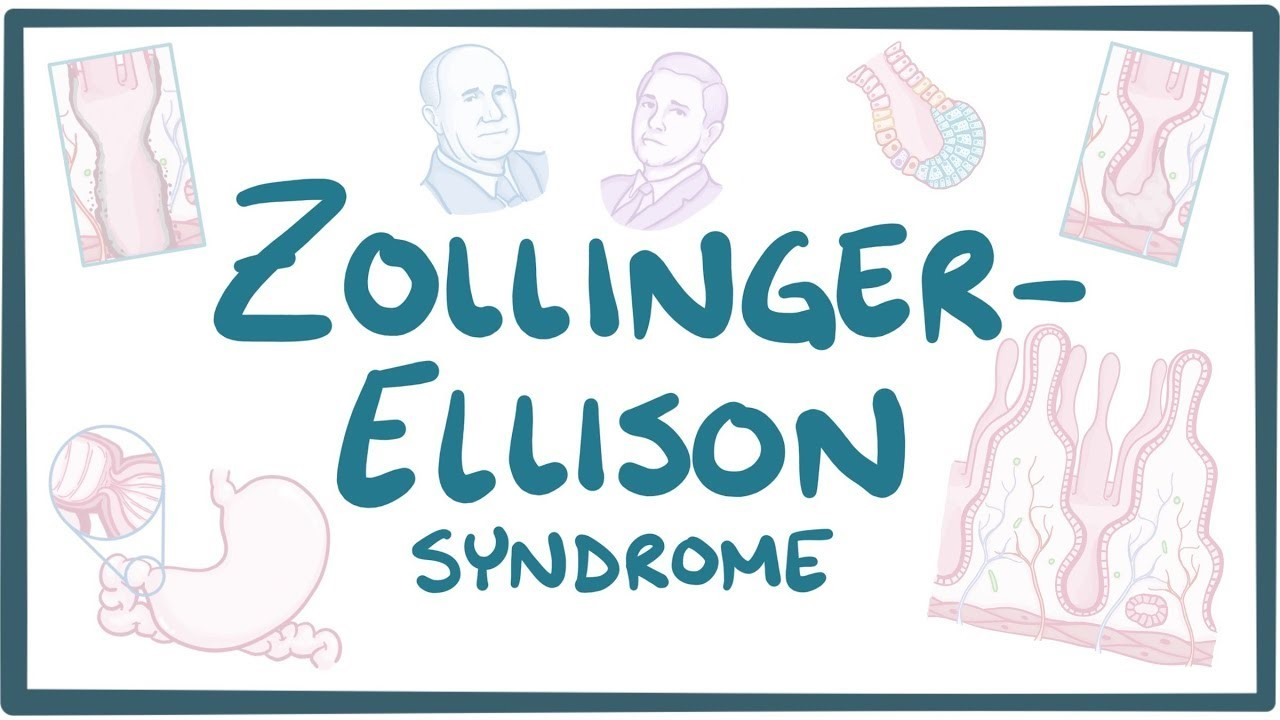 Zollinger Ellison Syndrome