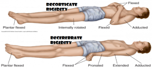 Decorticate Rigidity:abnormal flexor response
