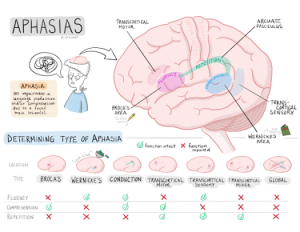 Types of Aphasia