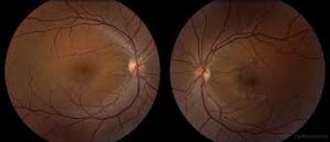 TOXIC - NUTRITIONAL OPTIC NEUROPATHY